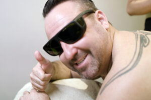 Laser treatment to remove hair on men