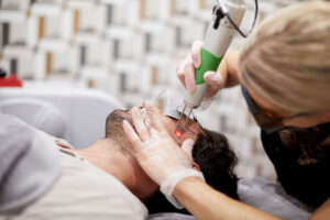 Male Grooming Service - Pico-toning